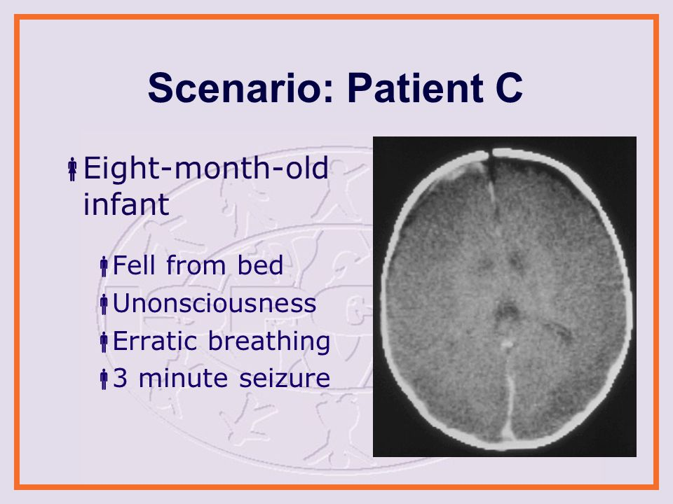Scenario: Patient C  Eight-month-old infant  Fell from bed  Unonsciousness  Erratic breathing  3 minute seizure