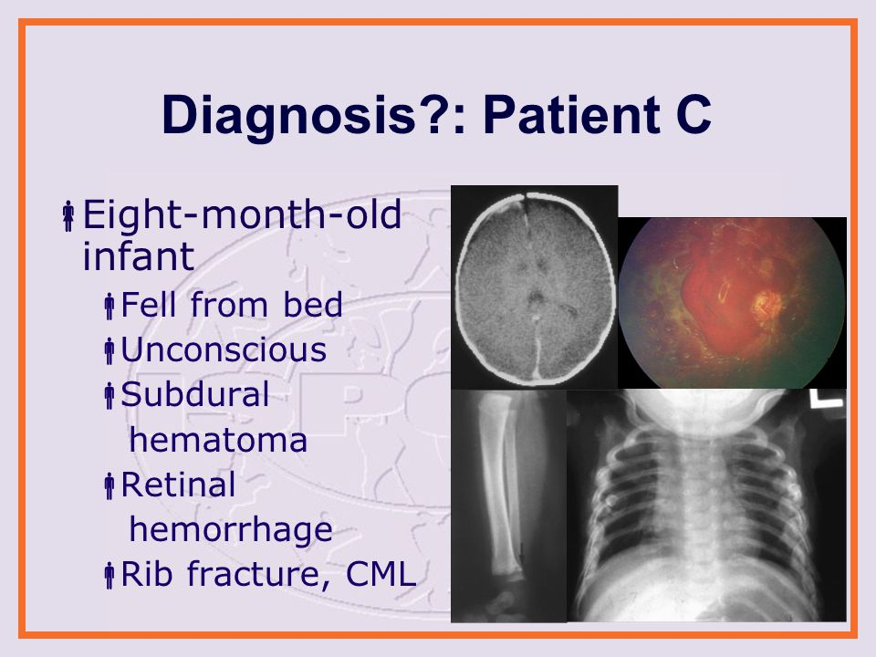 Diagnosis : Patient C  Eight-month-old infant  Fell from bed  Unconscious  Subdural hematoma  Retinal hemorrhage  Rib fracture, CML