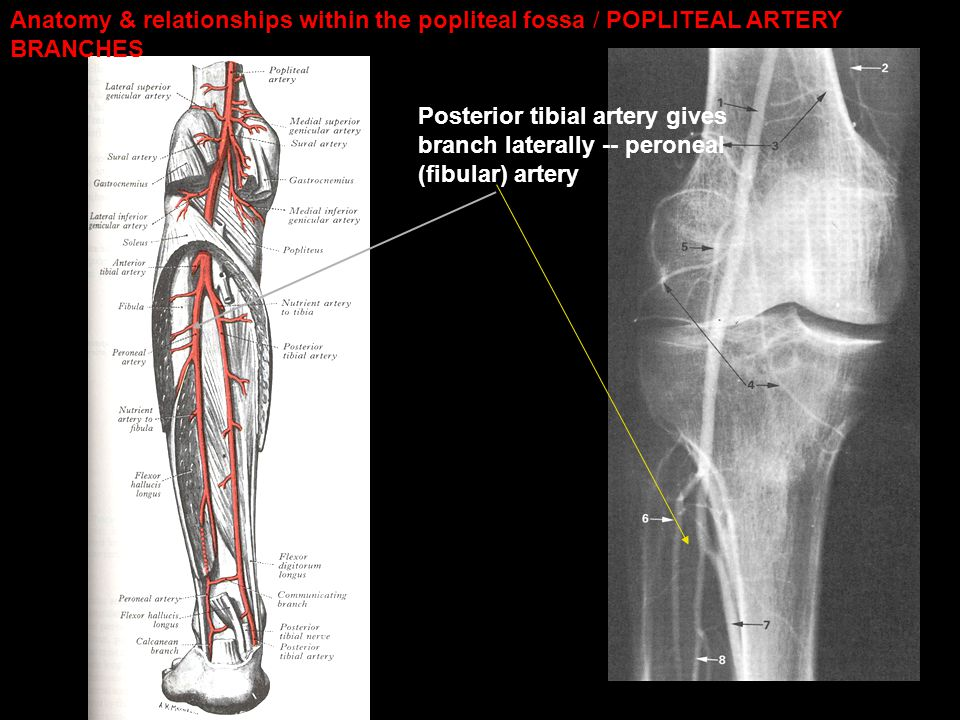 Posterior tibial artery gives branch laterally -- peroneal (fibular) artery Anatomy & relationships within the popliteal fossa / POPLITEAL ARTERY BRAN