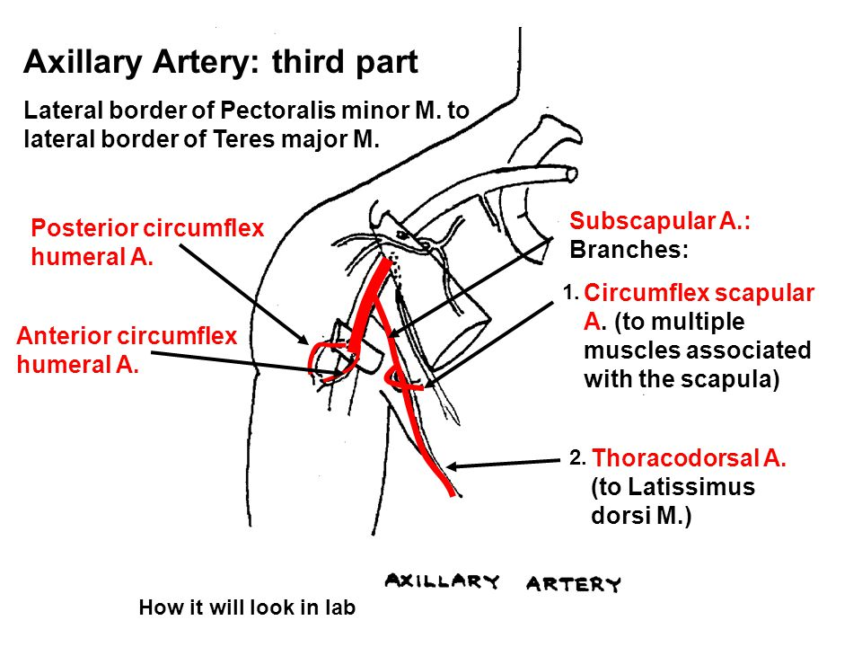 Axillary Artery: third part Lateral border of Pectoralis minor M.