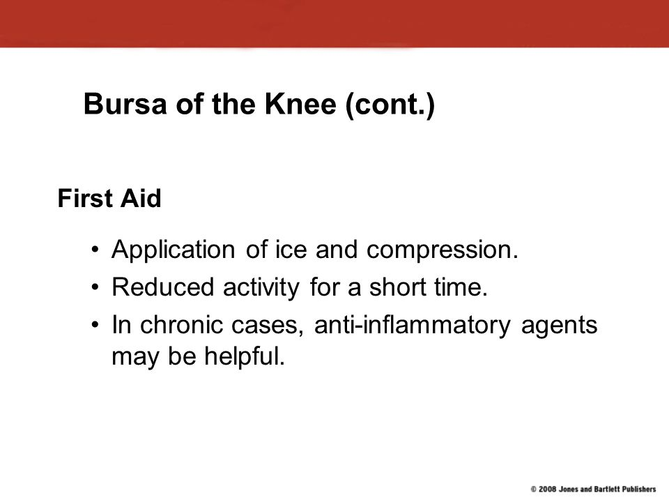 Bursa of the Knee (cont.) First Aid Application of ice and compression.