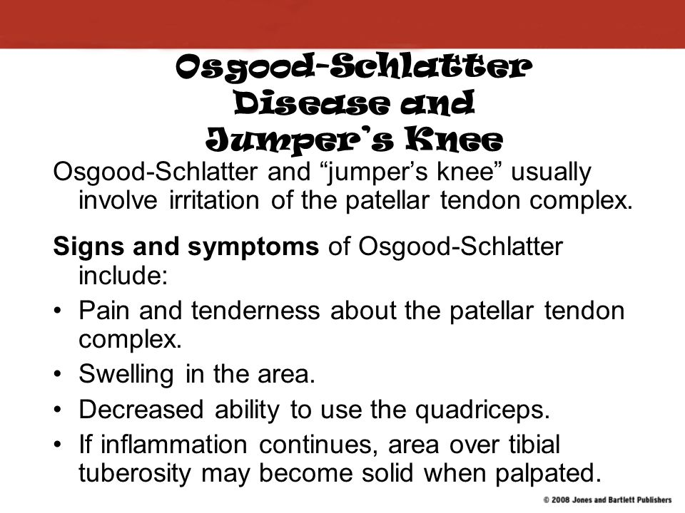Osgood-Schlatter Disease and Jumper's Knee Osgood-Schlatter and jumper's knee usually involve irritation of the patellar tendon complex.