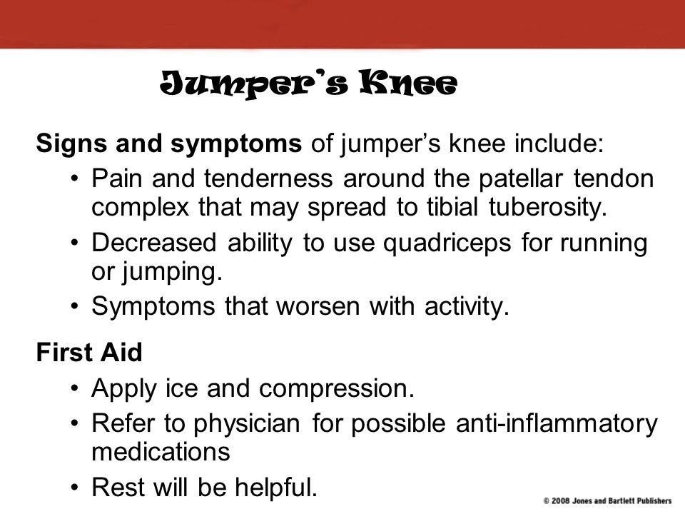 Jumper's Knee Signs and symptoms of jumper's knee include: Pain and tenderness around the patellar tendon complex that may spread to tibial tuberosity.