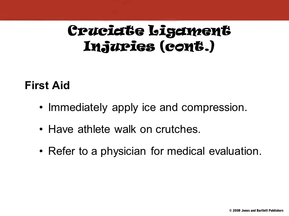 Cruciate Ligament Injuries (cont.) First Aid Immediately apply ice and compression.