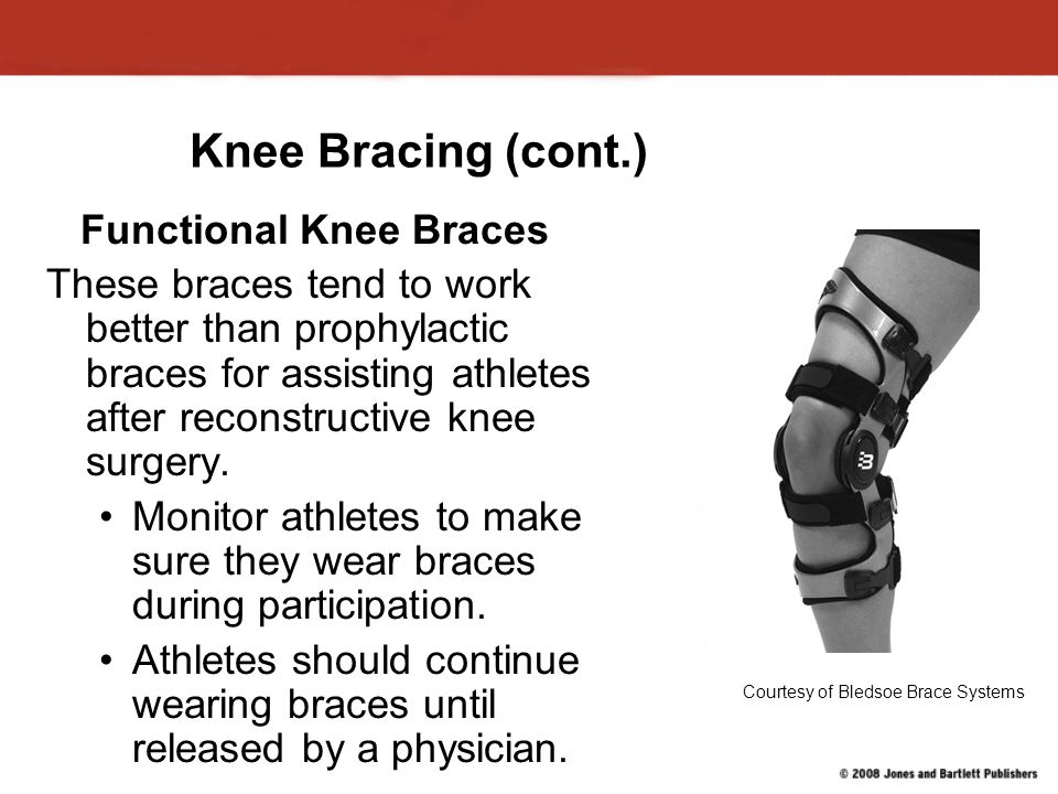 Knee Bracing (cont.) Functional Knee Braces These braces tend to work better than prophylactic braces for assisting athletes after reconstructive knee surgery.