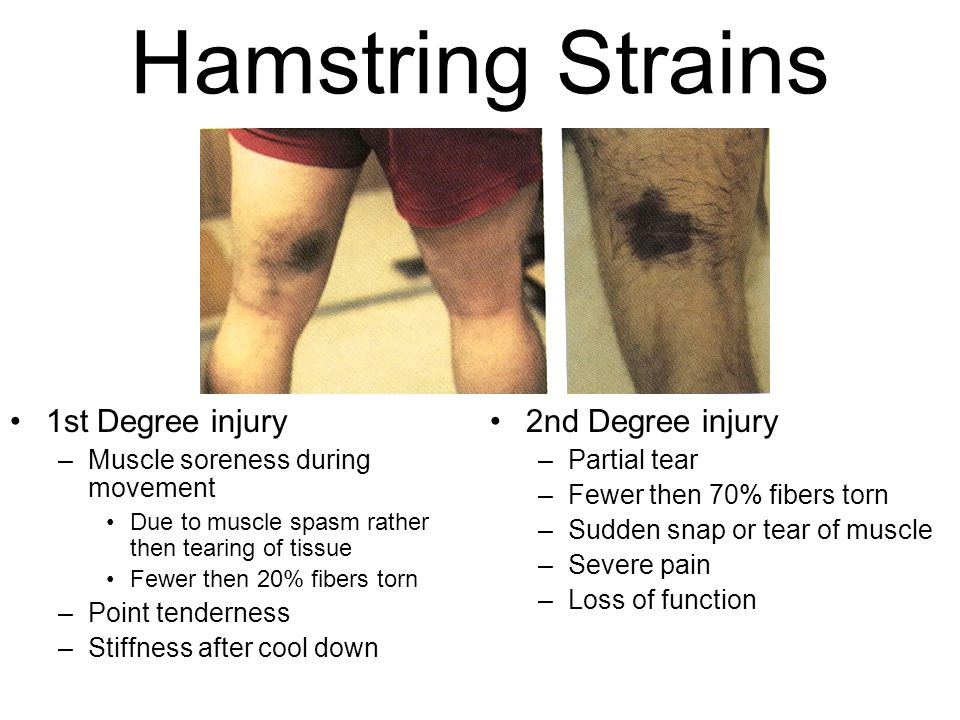 Hamstring Strains 1st Degree injury –Muscle soreness during movement Due to muscle spasm rather then tearing of tissue Fewer then 20% fibers torn –Poi