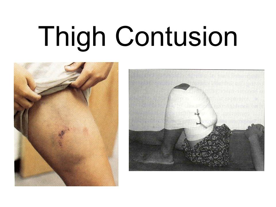 Thigh Contusion
