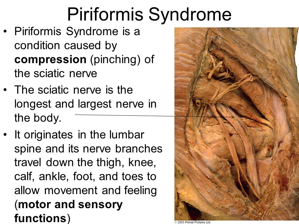 Piriformis Syndrome Piriformis Syndrome is a condition caused by compression (pinching) of the sciatic nerve The sciatic nerve is the longest and larg