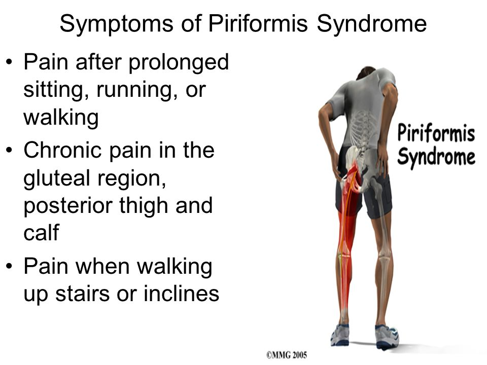 Symptoms of Piriformis Syndrome Pain after prolonged sitting, running, or walking Chronic pain in the gluteal region, posterior thigh and calf Pain wh