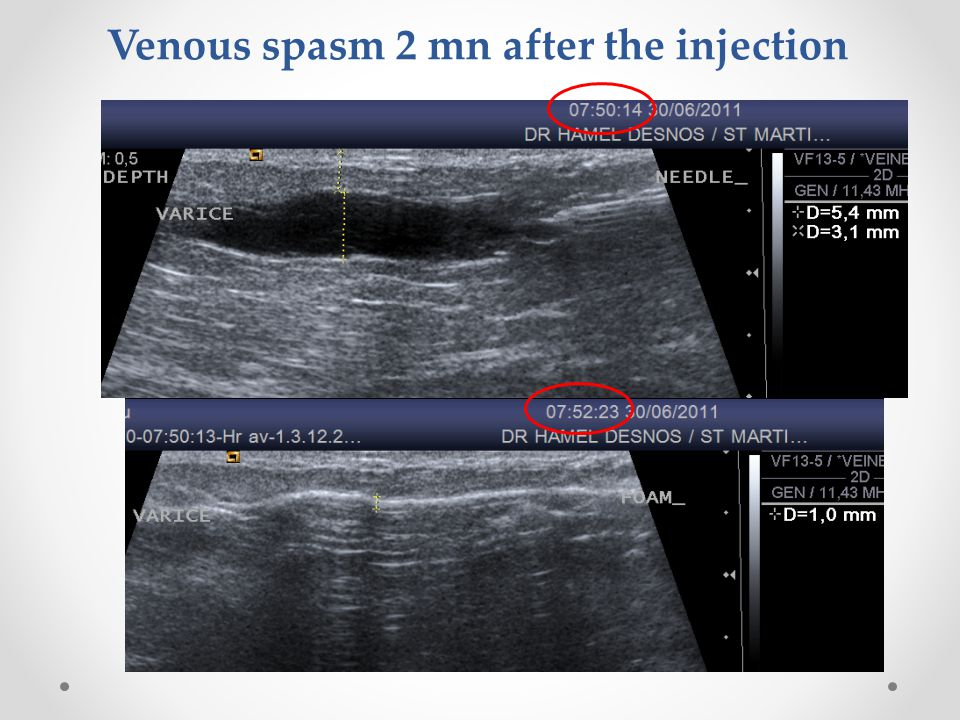 Venous spasm 2 mn after the injection