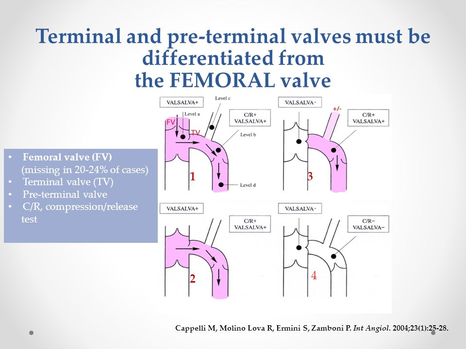 Terminal and pre-terminal valves must be differentiated from the FEMORAL valve Cappelli M, Molino Lova R, Ermini S, Zamboni P.