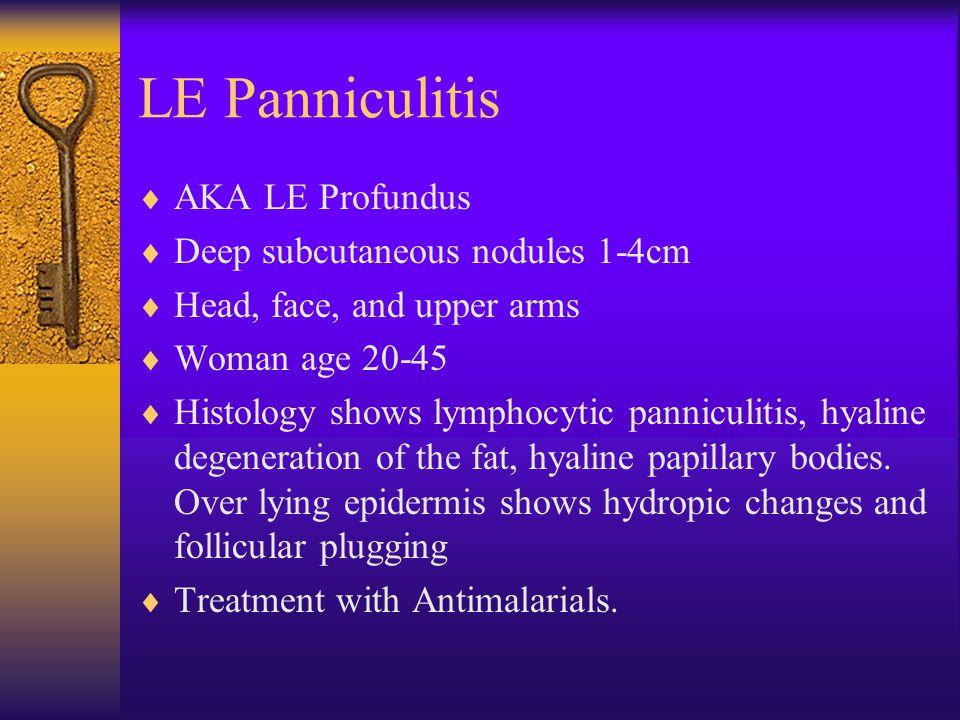 LE Panniculitis  AKA LE Profundus  Deep subcutaneous nodules 1-4cm  Head, face, and upper arms  Woman age 20-45  Histology shows lymphocytic pann