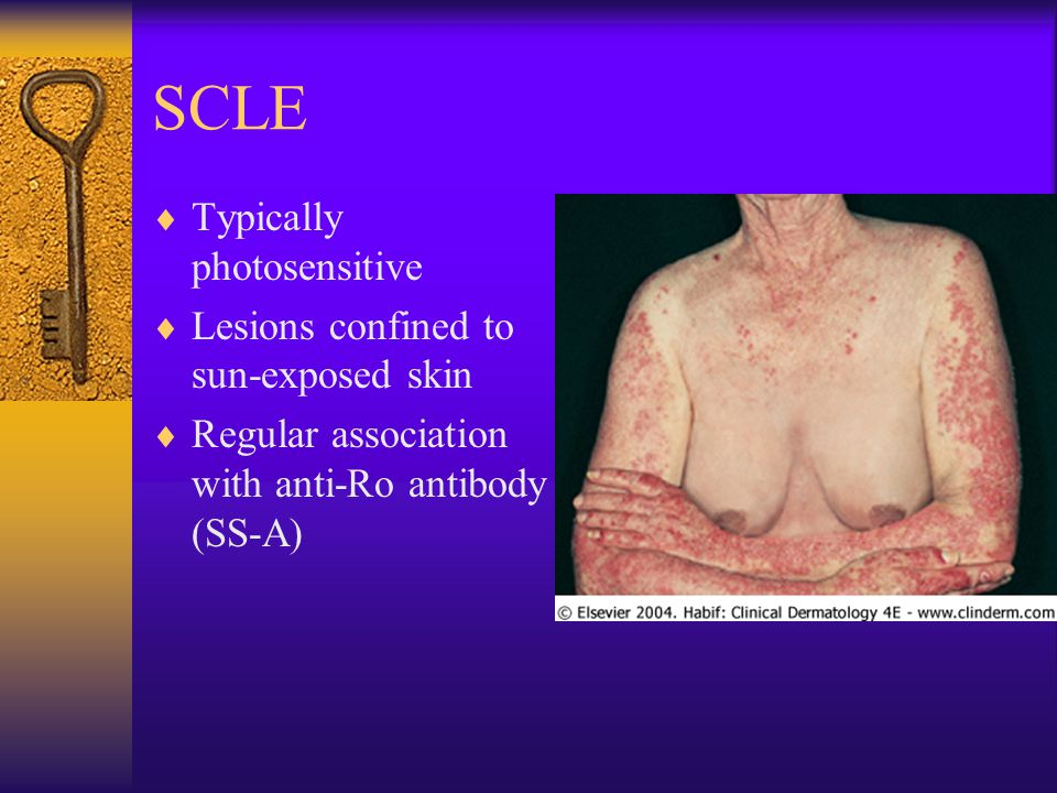 SCLE  Typically photosensitive  Lesions confined to sun-exposed skin  Regular association with anti-Ro antibody (SS-A)