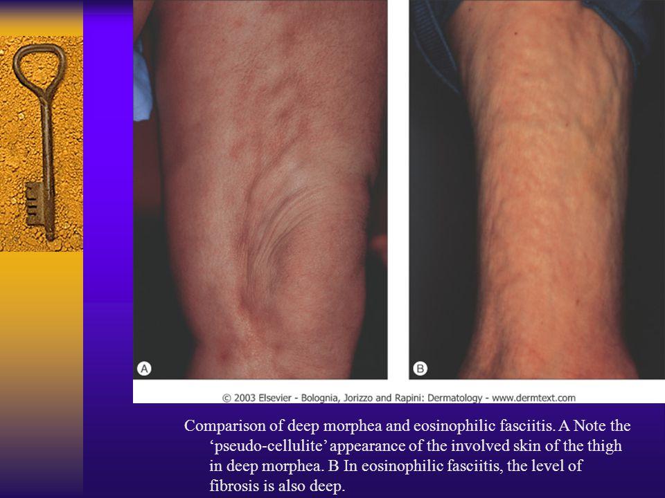 Comparison of deep morphea and eosinophilic fasciitis. A Note the 'pseudo-cellulite' appearance of the involved skin of the thigh in deep morphea. B I