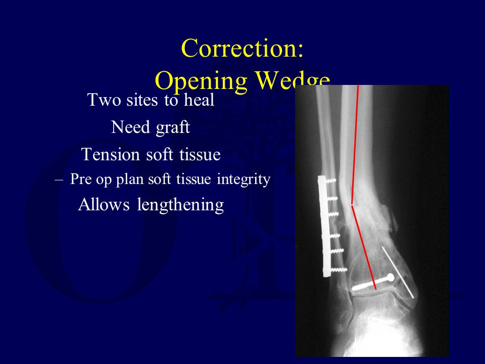 Correction: Opening Wedge Two sites to heal Need graft Tension soft tissue –Pre op plan soft tissue integrity Allows lengthening