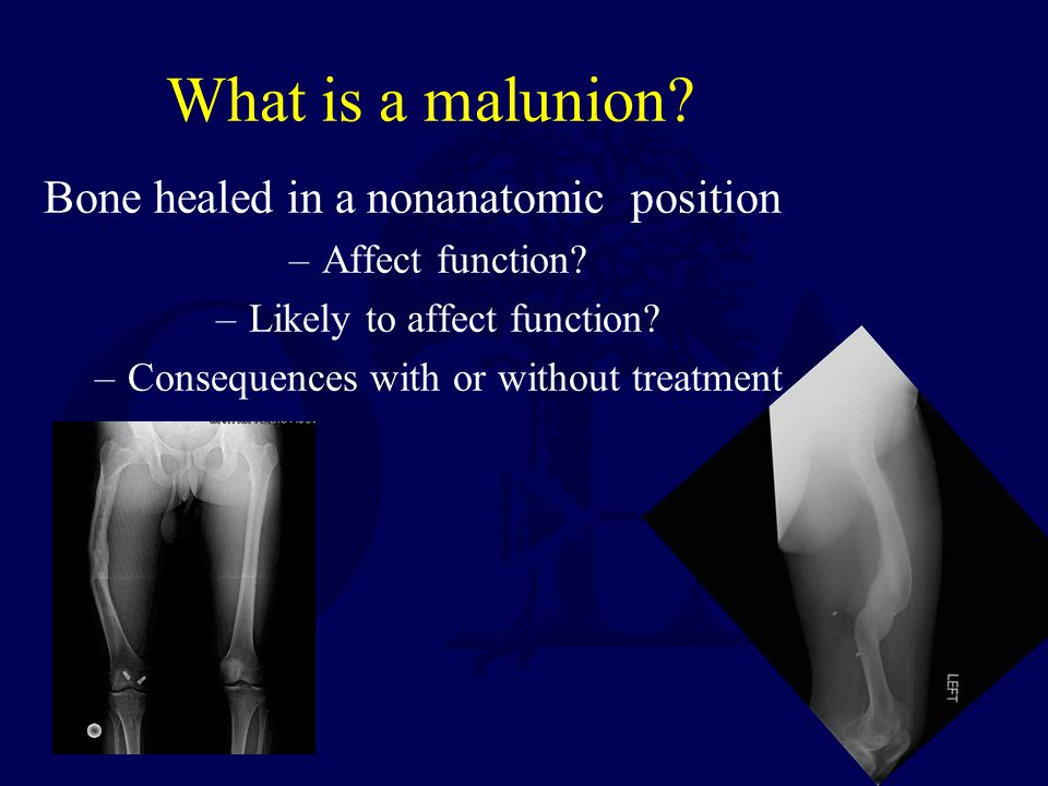 What is a malunion. Bone healed in a nonanatomic position –Affect function.