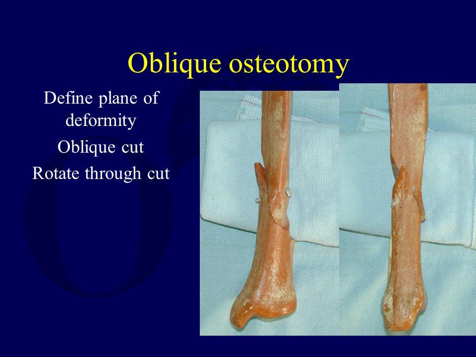 Oblique osteotomy Define plane of deformity Oblique cut Rotate through cut