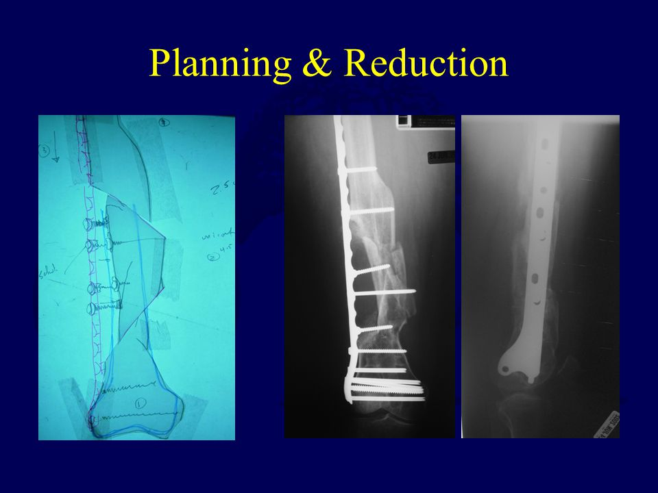 Planning & Reduction