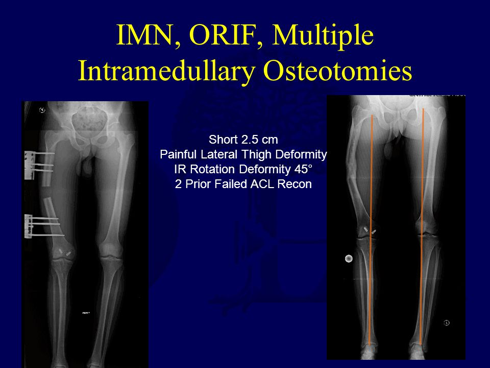 IMN, ORIF, Multiple Intramedullary Osteotomies Short 2.5 cm Painful Lateral Thigh Deformity IR Rotation Deformity 45° 2 Prior Failed ACL Recon