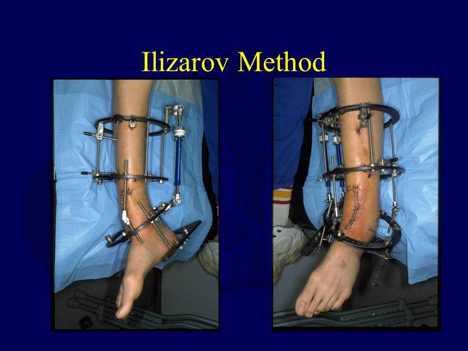 Ilizarov Method