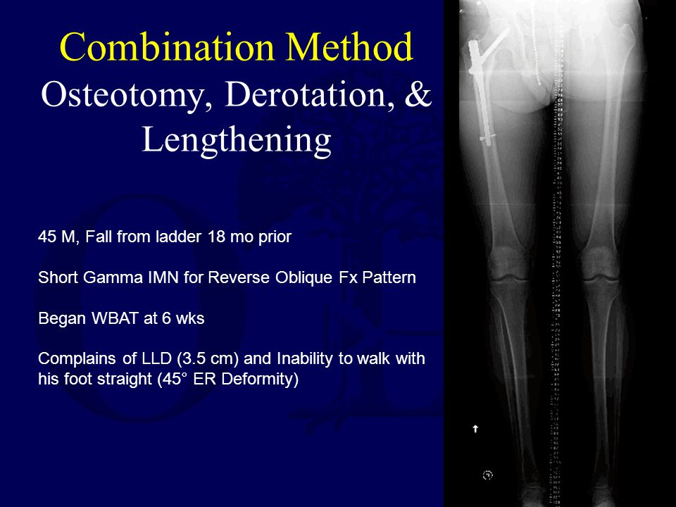Combination Method Osteotomy, Derotation, & Lengthening 45 M, Fall from ladder 18 mo prior Short Gamma IMN for Reverse Oblique Fx Pattern Began WBAT at 6 wks Complains of LLD (3.5 cm) and Inability to walk with his foot straight (45° ER Deformity)
