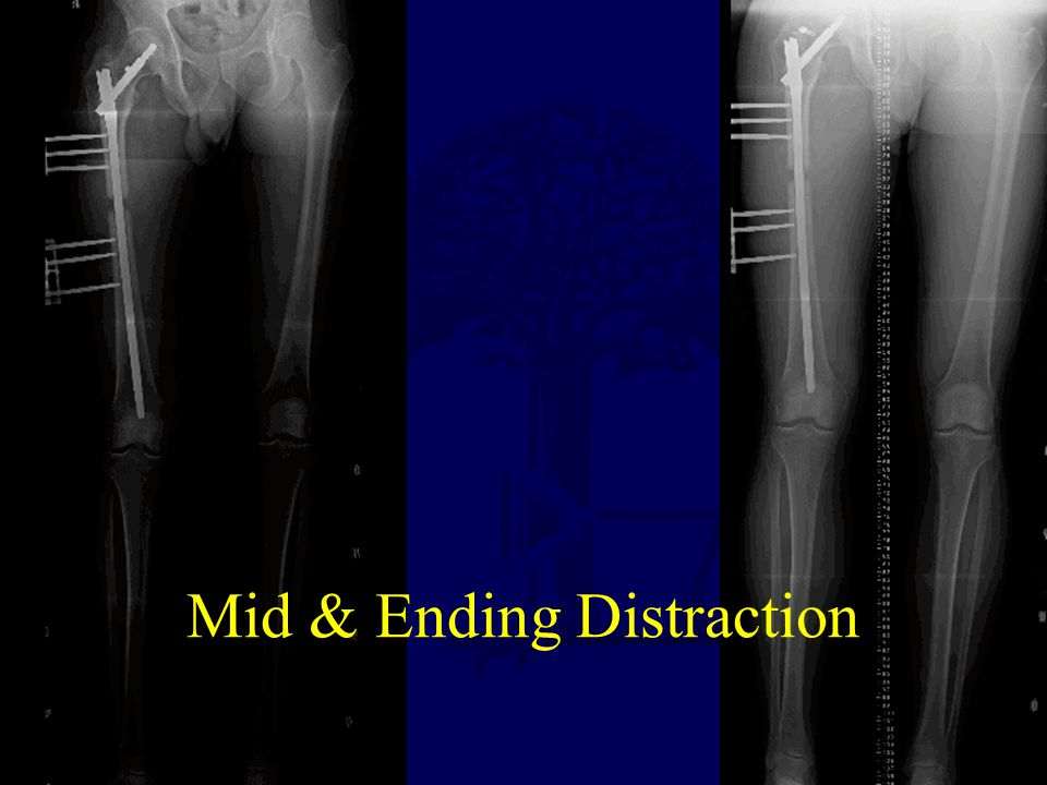 Mid & Ending Distraction