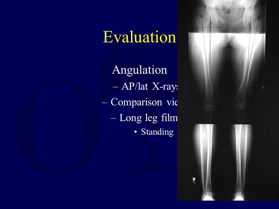 Evaluation Angulation –AP/lat X-rays –Comparison views –Long leg films Standing