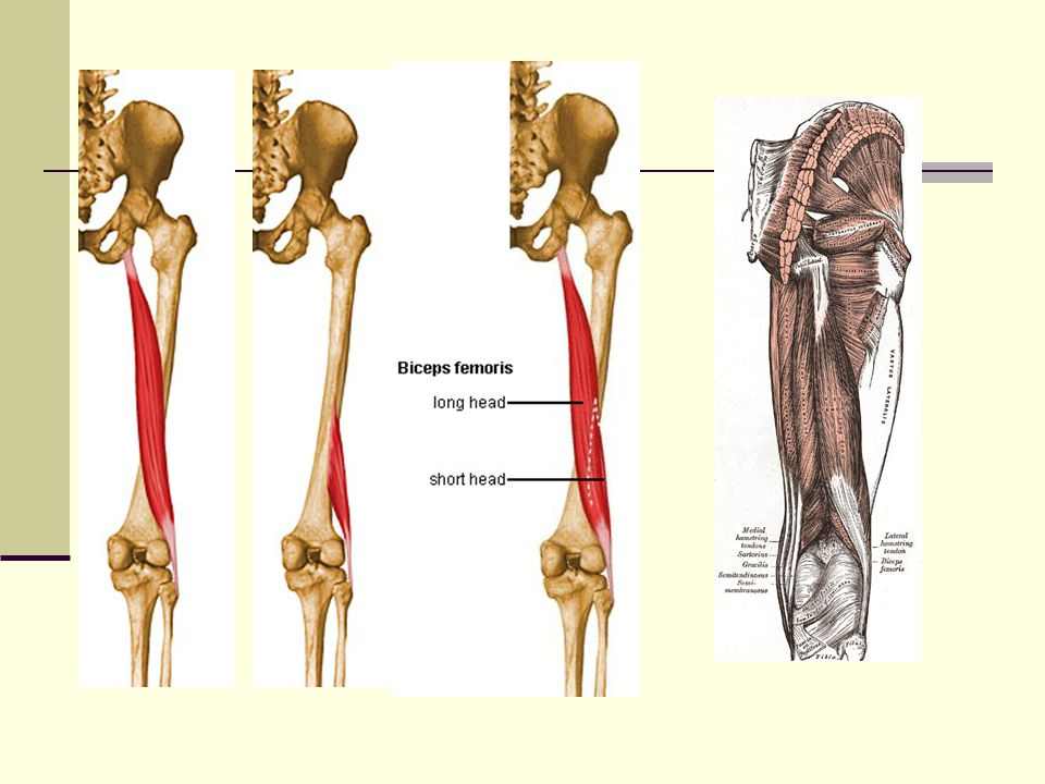 Biceps Femoris One of the hamstring muscles (semitendinosus and semimembranosus) A two-joint muscle which is a powerful hip extensor unless the knees