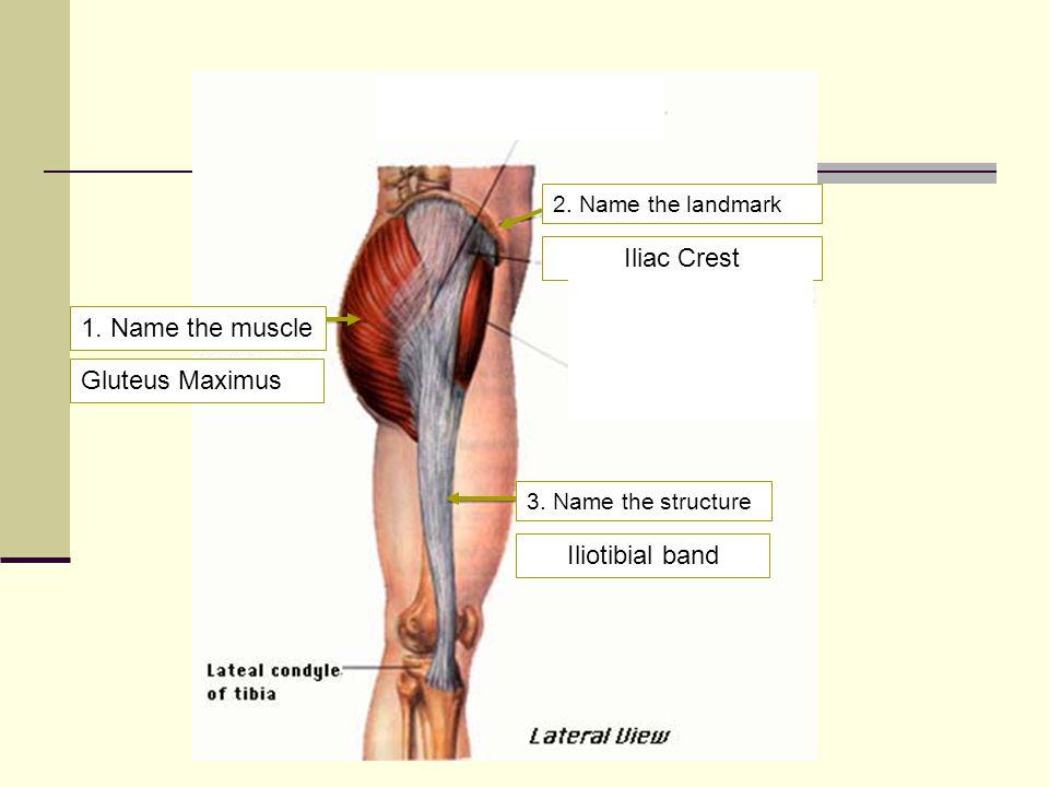 Name the muscles 1. Tensor fasciae latae 2. Sartorius 2 1