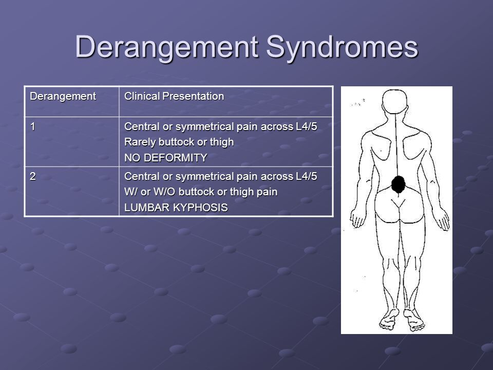 Derangement Syndromes Derangement Clinical Presentation 1 Central or symmetrical pain across L4/5 Rarely buttock or thigh NO DEFORMITY 2 Central or sy