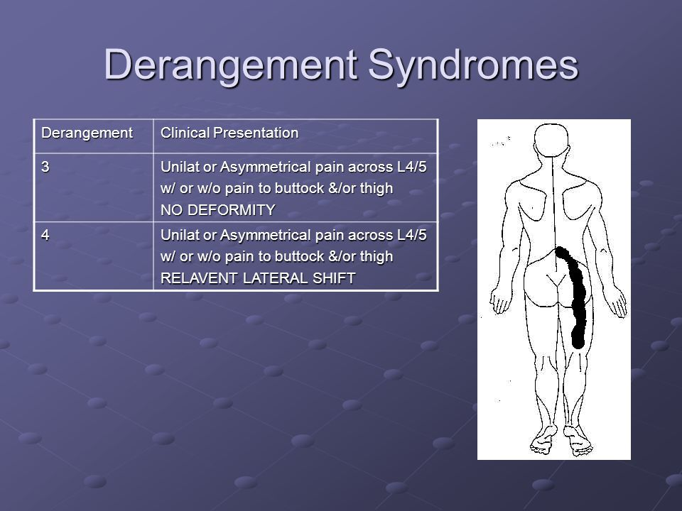 Derangement Syndromes Derangement Clinical Presentation 3 Unilat or Asymmetrical pain across L4/5 w/ or w/o pain to buttock &/or thigh NO DEFORMITY 4