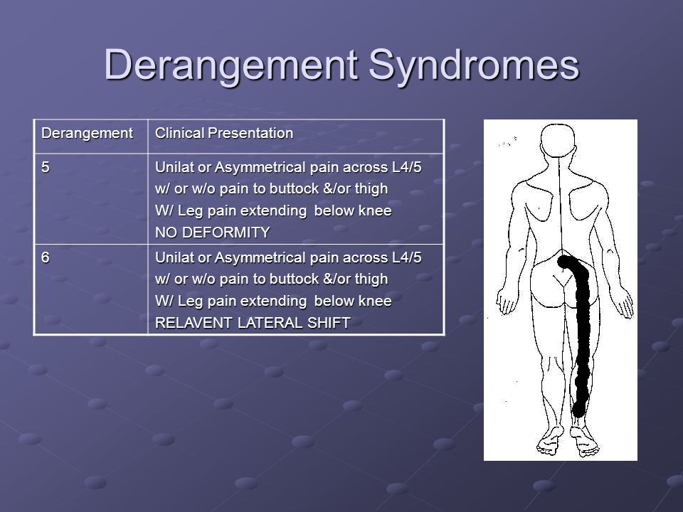 Derangement Syndromes Derangement Clinical Presentation 7 Unilat or Asymmetrical pain across L4/5 w/ or w/o pain to buttock &/or thigh INCREASED LUMBAR LORDOSIS