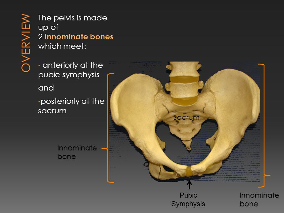 The innominate bone is made up of 3 fused bones: 1.