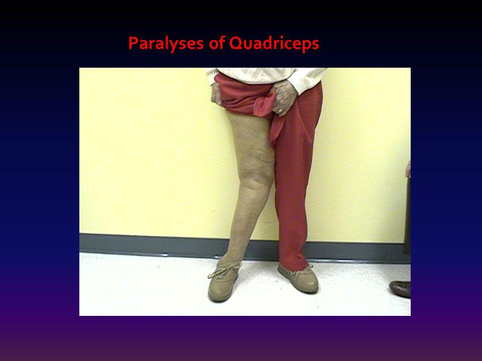 Paralyses of Quadriceps Paralyses of Quadriceps