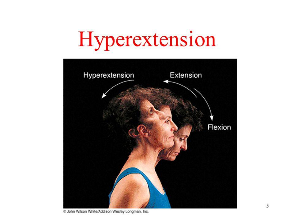 5 Hyperextension