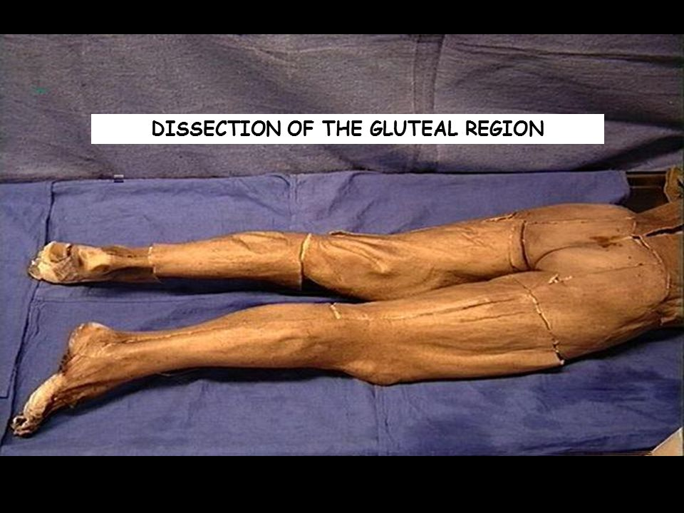 DISSECTION OF THE GLUTEAL REGION