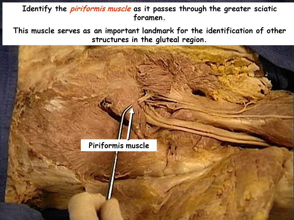 Identify the piriformis muscle as it passes through the greater sciatic foramen. This muscle serves as an important landmark for the identification of