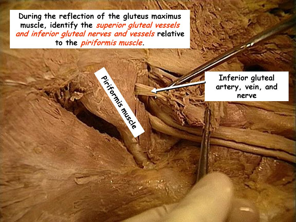During the reflection of the gluteus maximus muscle, identify the superior gluteal vessels and inferior gluteal nerves and vessels relative to the pir