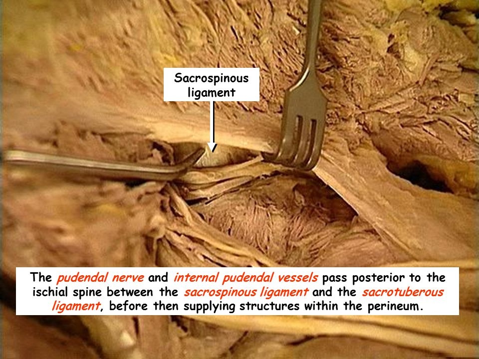 Sacrospinous ligament The pudendal nerve and internal pudendal vessels pass posterior to the ischial spine between the sacrospinous ligament and the s