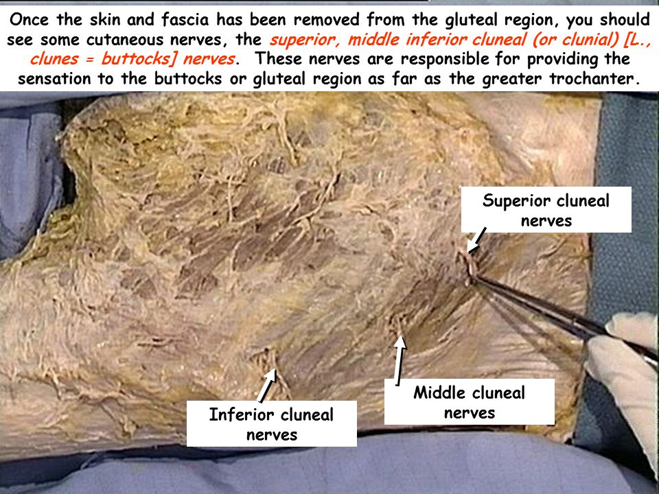 Superior cluneal nerves Once the skin and fascia has been removed from the gluteal region, you should see some cutaneous nerves, the superior, middle