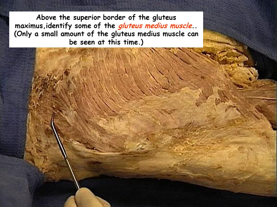 Above the superior border of the gluteus maximus,identify some of the gluteus medius muscle.. (Only a small amount of the gluteus medius muscle can be