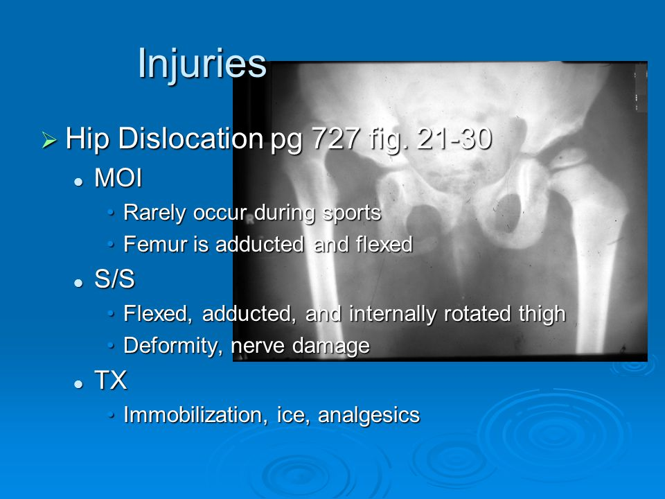 Injuries  Hip Dislocation pg 727 fig. 21-30 MOI MOI Rarely occur during sportsRarely occur during sports Femur is adducted and flexedFemur is adducte