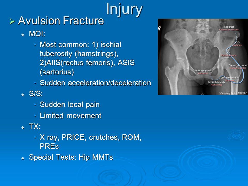 Injury  Avulsion Fracture MOI: MOI: Most common: 1) ischial tuberosity (hamstrings), 2)AIIS(rectus femoris), ASIS (sartorius)Most common: 1) ischial