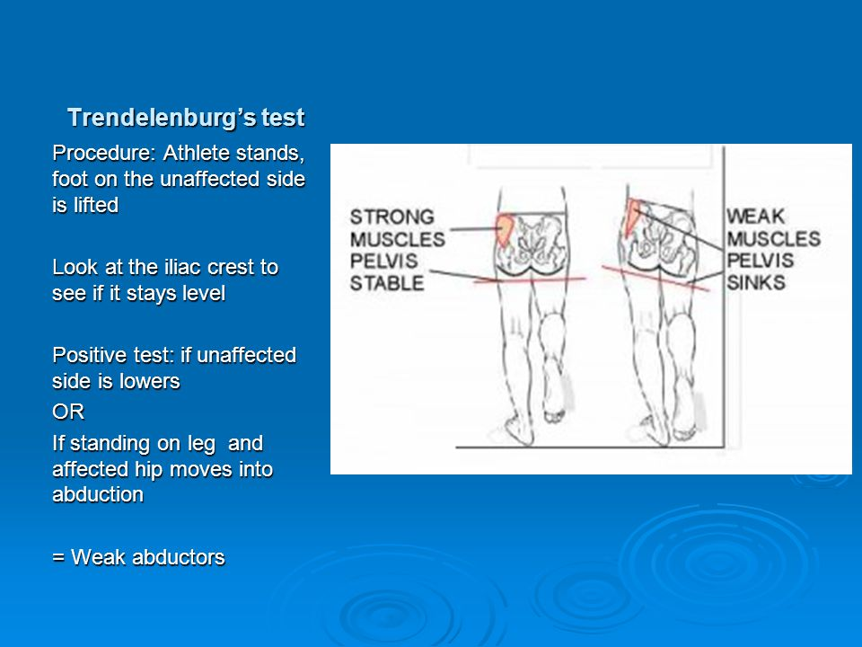 Trendelenburg's test Procedure: Athlete stands, foot on the unaffected side is lifted Look at the iliac crest to see if it stays level Positive test: