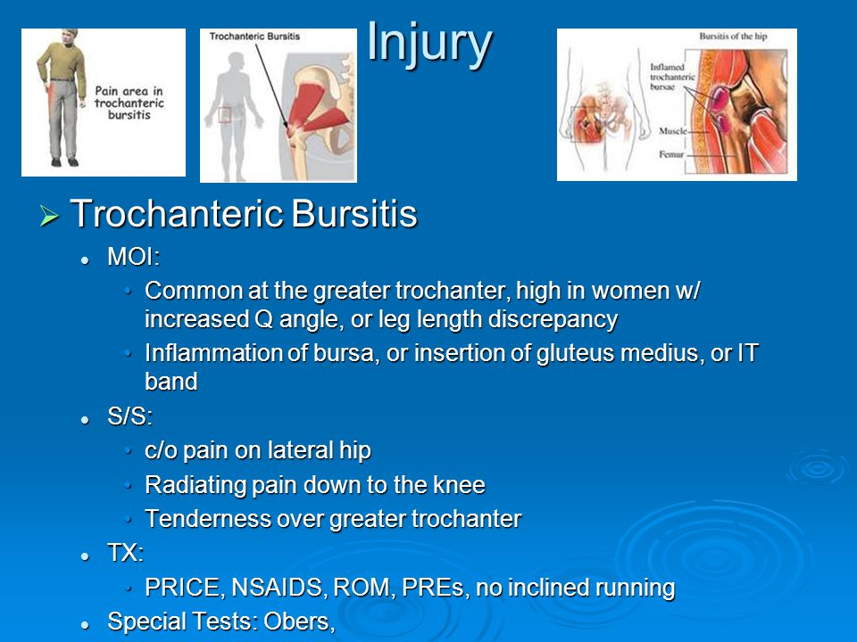 Injury  Trochanteric Bursitis MOI: MOI: Common at the greater trochanter, high in women w/ increased Q angle, or leg length discrepancyCommon at the