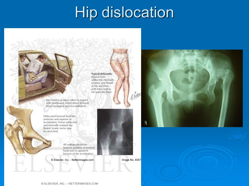 Injuries  Hip Dislocation pg 727 fig.