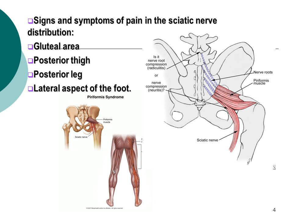 4  Signs and symptoms of pain in the sciatic nerve distribution:  Gluteal area  Posterior thigh  Posterior leg  Lateral aspect of the foot.