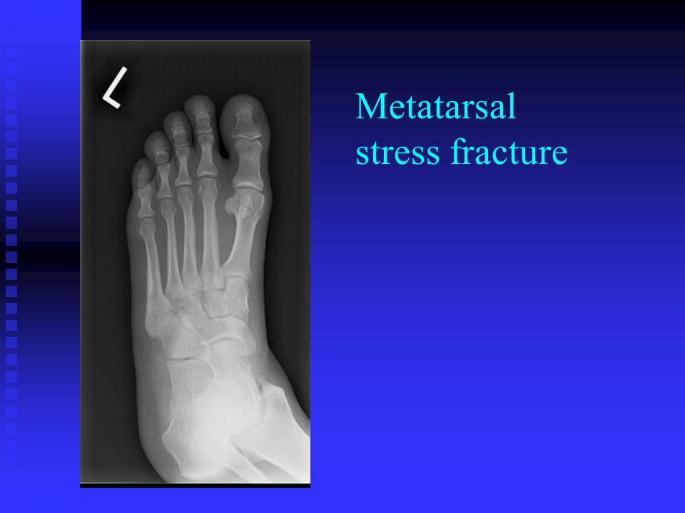 Metatarsal stress fx