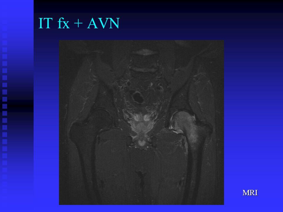 MRI IT fx + AVN