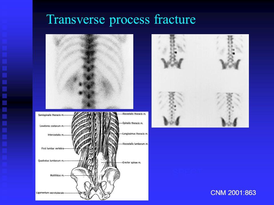 CNM 2001:863 planar SPECT Transverse process fracture